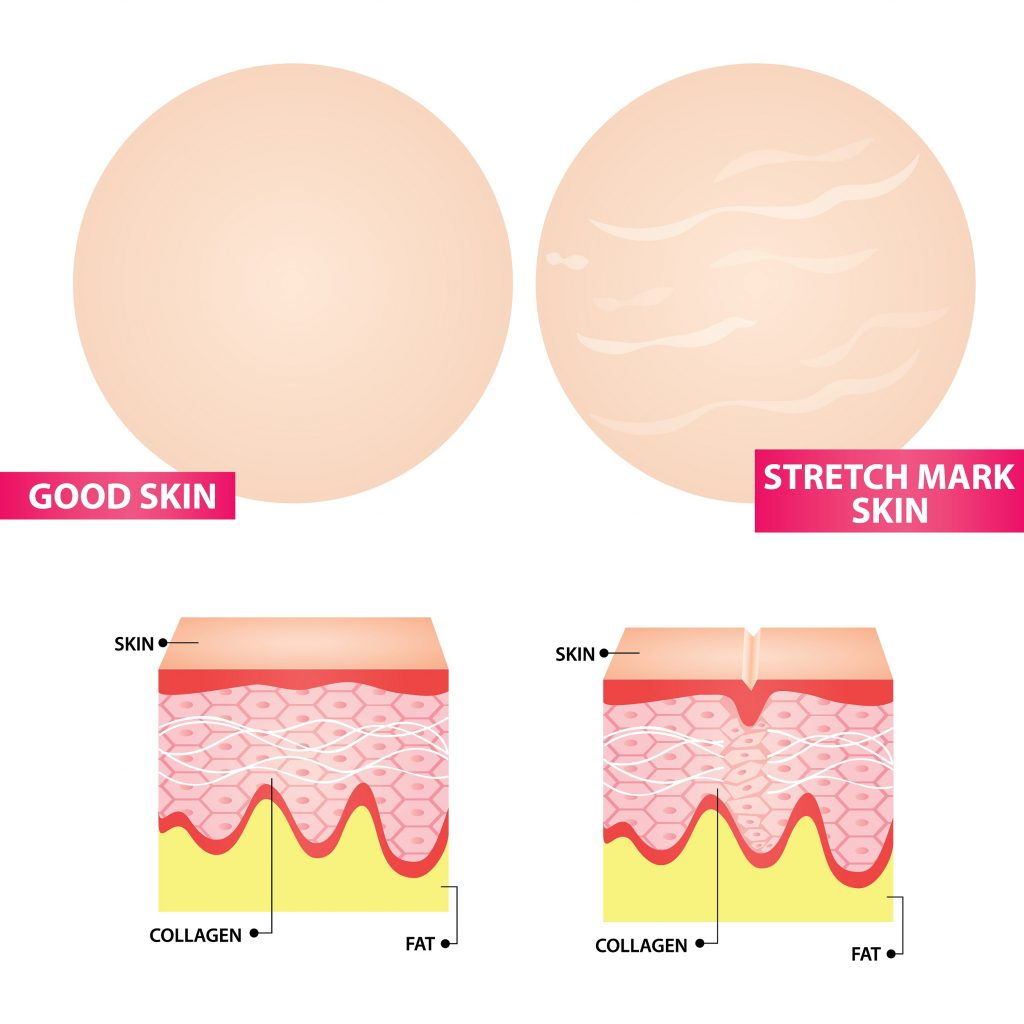 Pregnancy Stretch Marks is also a common problem during pregnancy